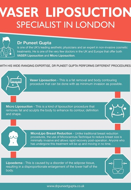 Vaser liposuction specialist in london infographic