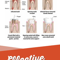 Root canal therapy   an effective treatment for infected teeth