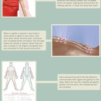 Acupuncture infographic revised