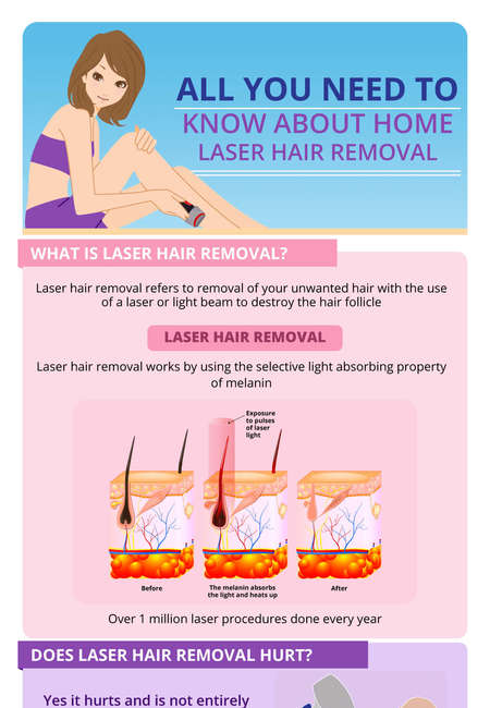 Home laser infographics