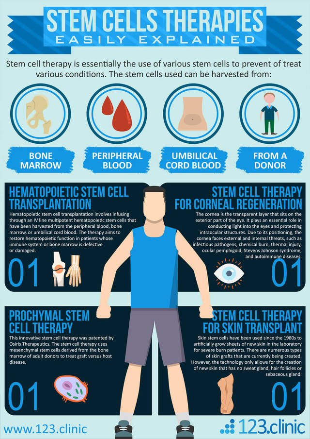Stem cells therapies easily explained infographic